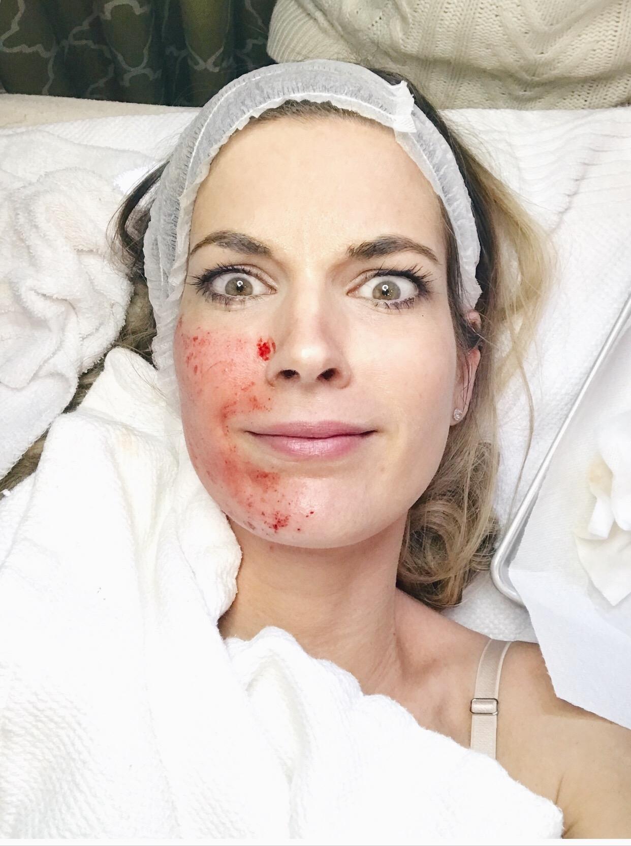 vampire facial review on pinteresting plans fashion blog